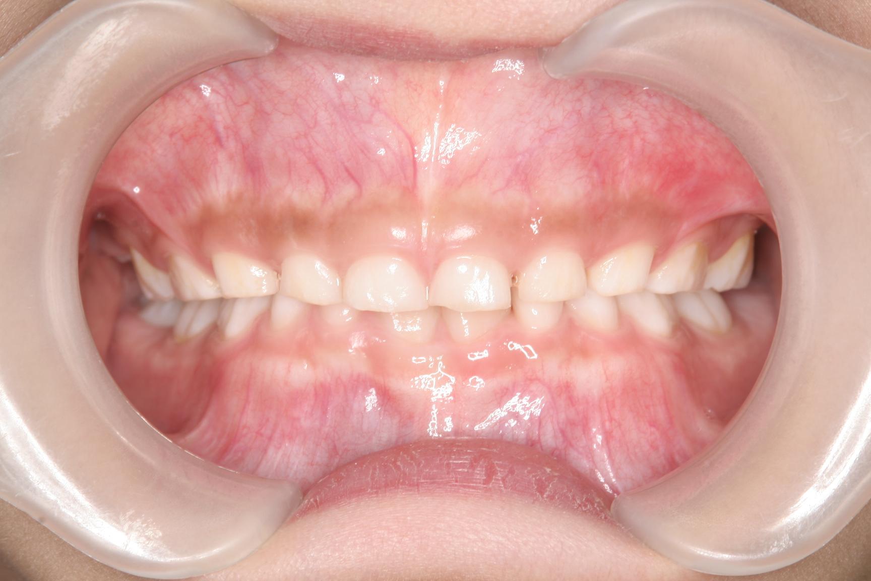 桑名市顎が小さいんですけど歯を抜かない矯正歯科 四日市・いなべ市・桑名市・菰野町で矯正治療をお考えなら大長歯科矯正歯科へ