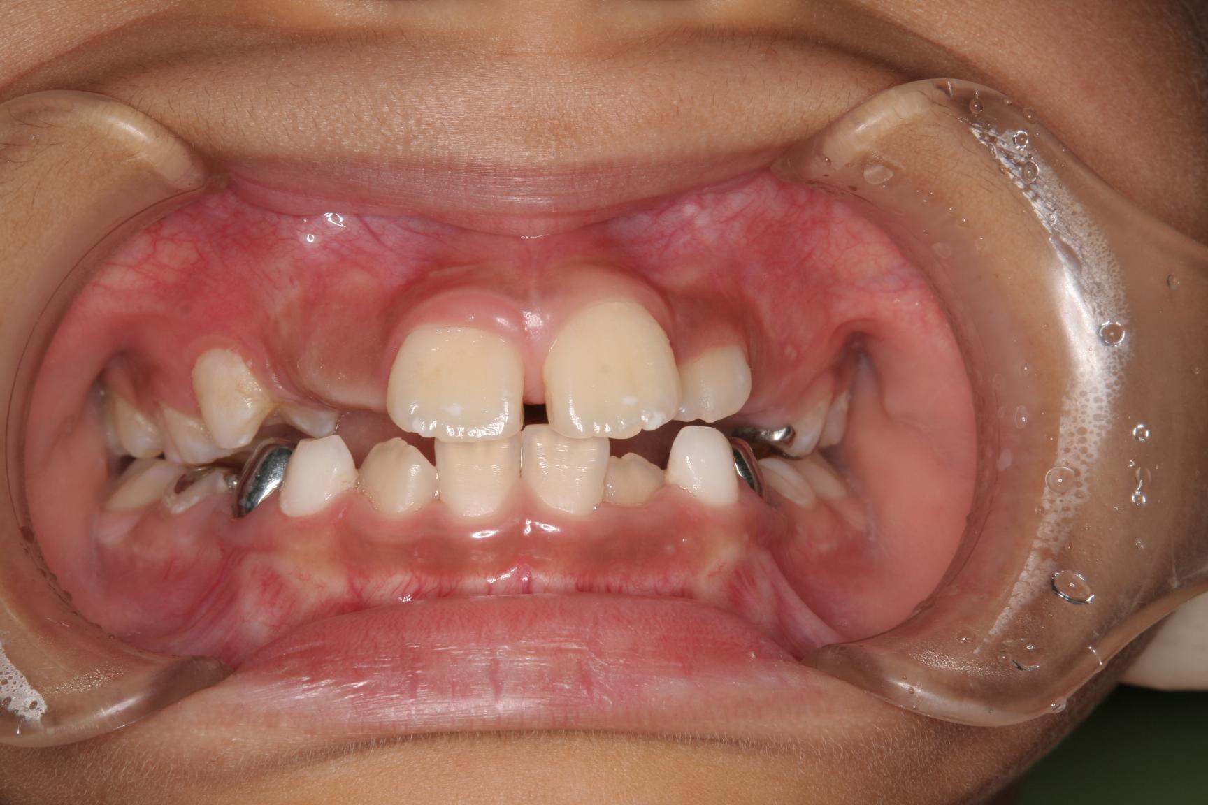 症例紹介 四日市・いなべ市・桑名市・菰野町で矯正治療をお考えなら大長歯科へ